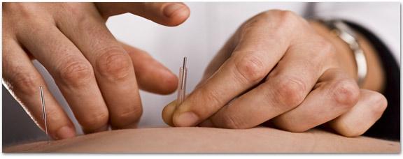 chiropractic durham raleigh acupuncture