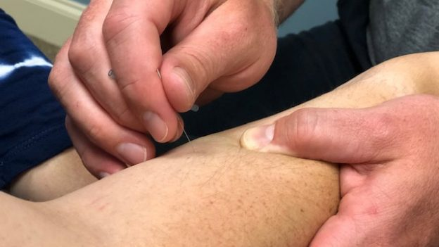 Triangle Chiropractic Dry Needling